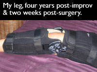 Leg in brace post ACL surgery